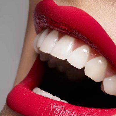 Teeth Restoration Webinar